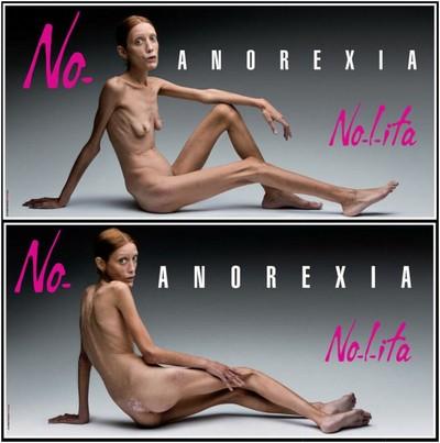Les filles décédées à cause de l'anorexie. 33822511