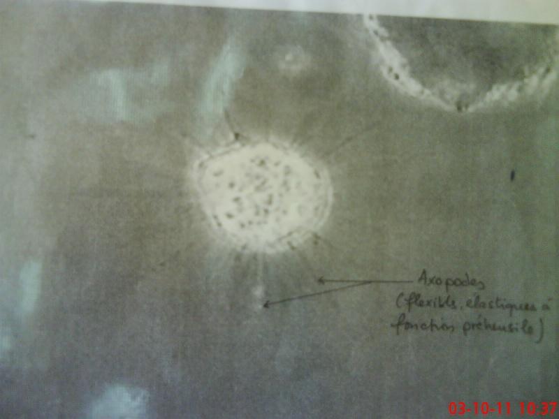 Zoologie - TP n ° 1 : PHYLUM DES PROTOZOAIRE Dsc02411