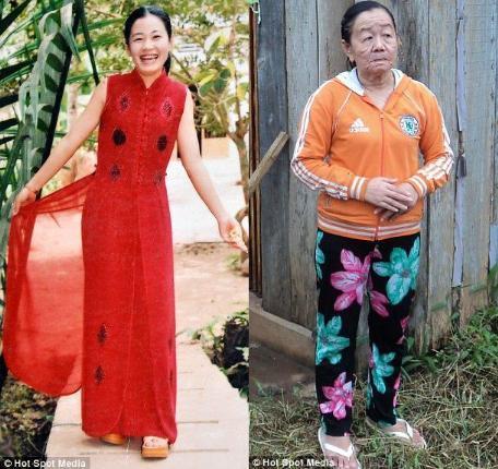 Mujere envejece 40 años en pocos dias. 44156_10