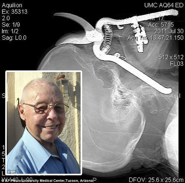 Una tijera podadora se le incrustó en un ojo pero sobrevivió Leroy-10