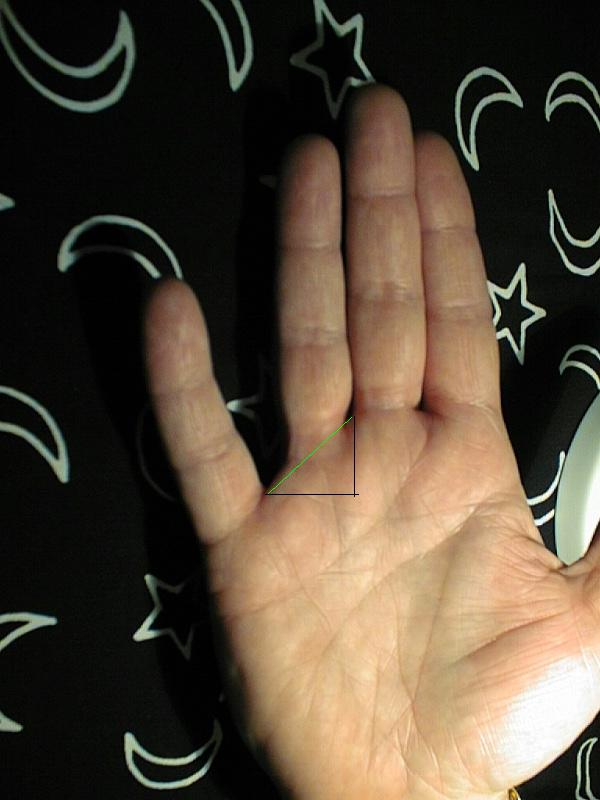 Low set finger (mercury finger) and meaning  Rogers12