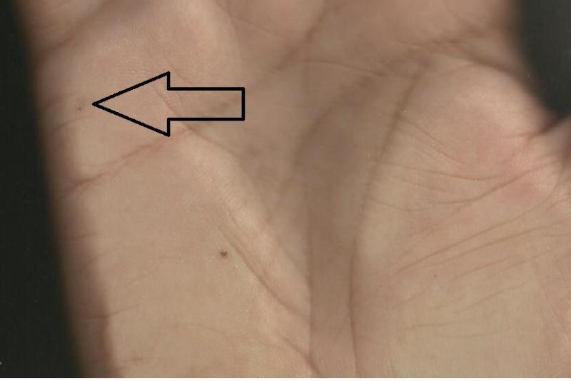mole between marrige line ..... Mole10