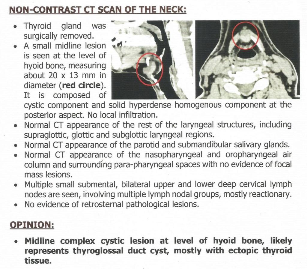 تغير في الصوت والتهابات متنقلة في الغدد اللمفاوية Scan-110