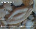 Foraminifères de FERCOURT (Oise) -forams Fer-fo21