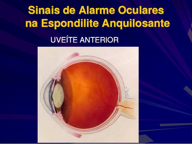 A Uveíte pelo Dr. José Luduvico U410