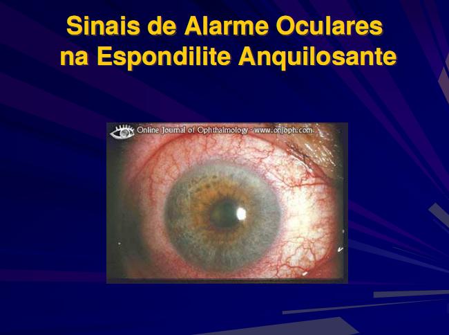 A Uveíte pelo Dr. José Luduvico U710