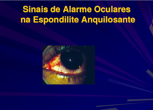 A Uveíte pelo Dr. José Luduvico U910