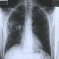 Téléthorax par jour Image210