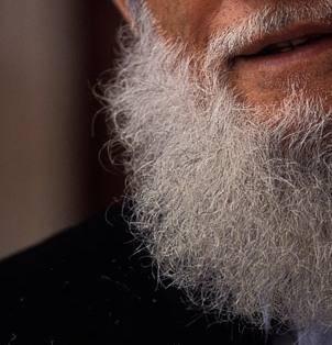 Fearing harm for having a beard Islam-10
