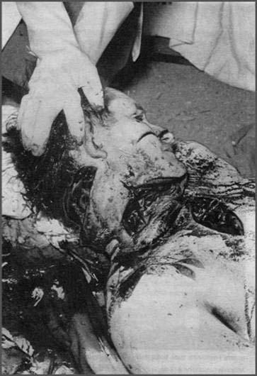 19 Mars 1962 :  CESSEZ LE FEU...ou la victoire du FLN 1710