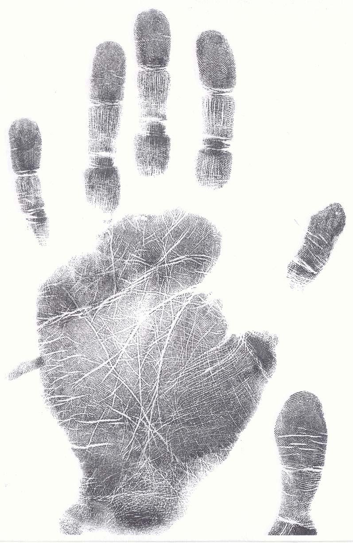 Fingerprints reveal clues about congenital heart defects! Female11