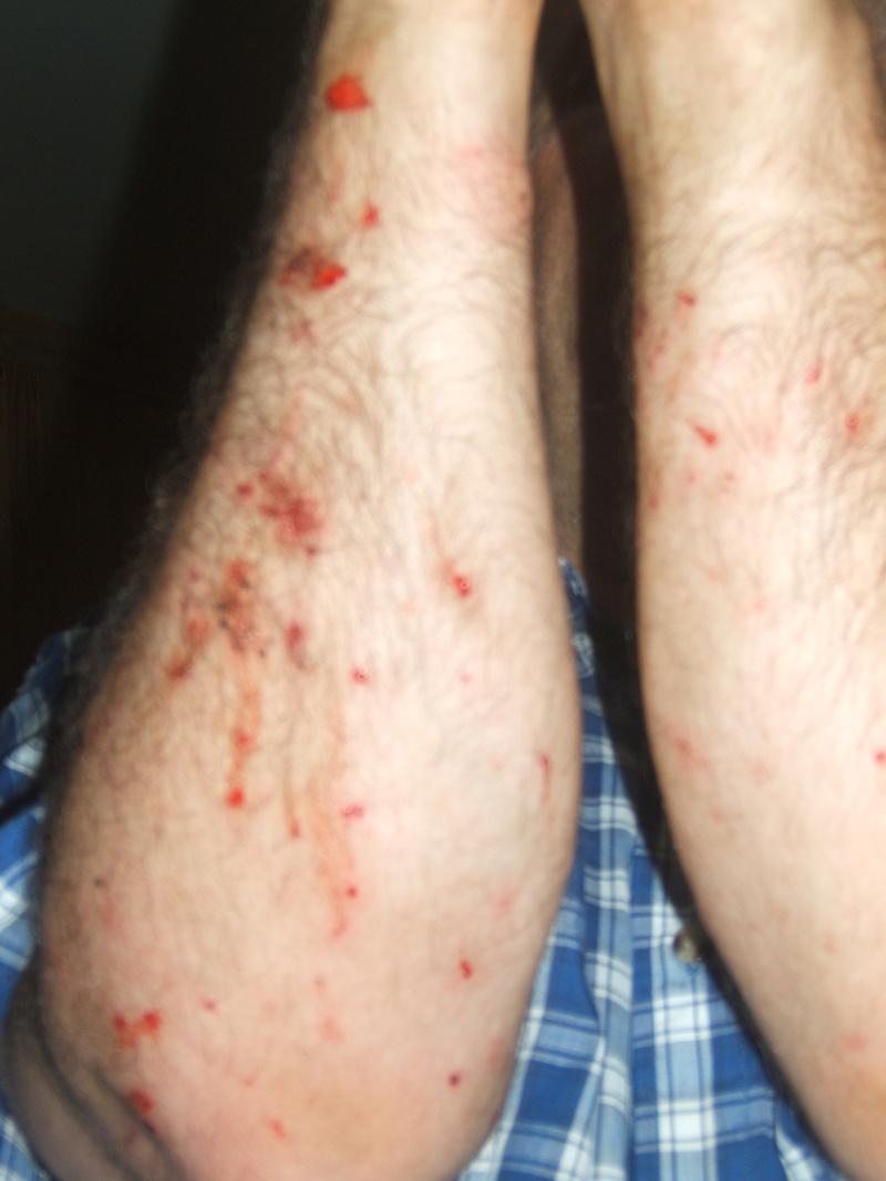 chasse moustique Dscf2431