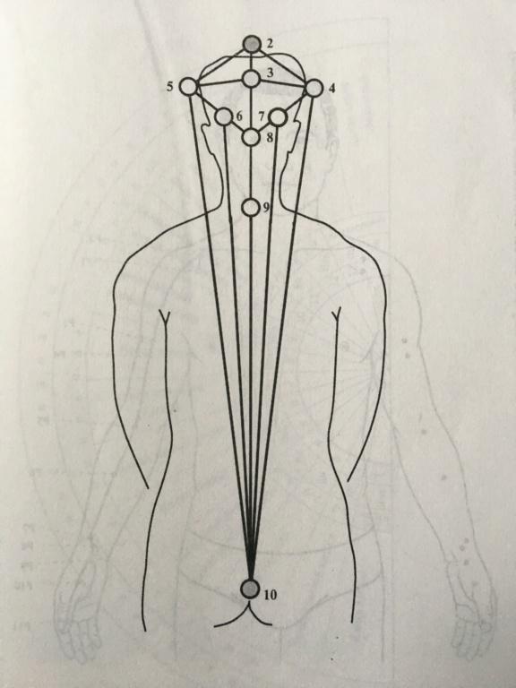 Практическая диагностика - Страница 37 A6b03e10