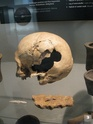 Des crânes trépannés pour Serge ! Danema18