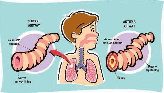 Asma e Allergie Asma_b11