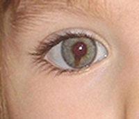 Why have the McCanns lied about Maddie's coloboma for 4 years? Madele10