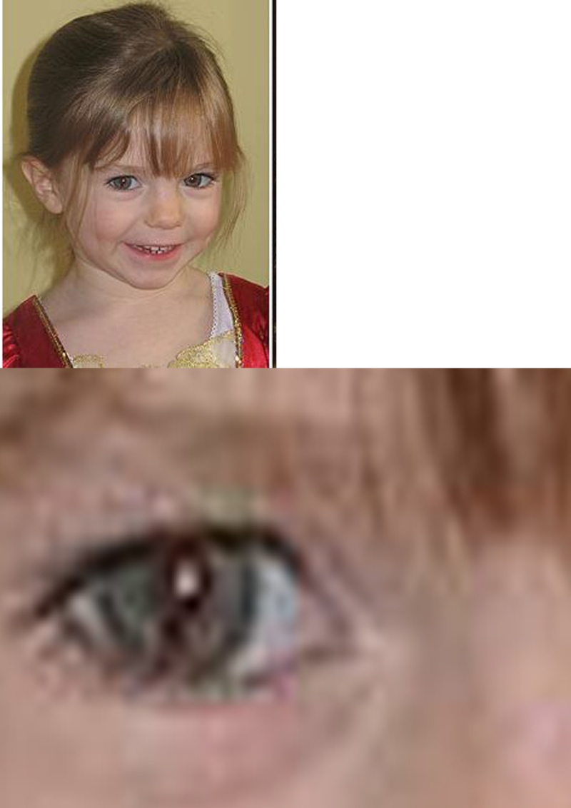 Why have the McCanns lied about Maddie's coloboma for 4 years? Mc10