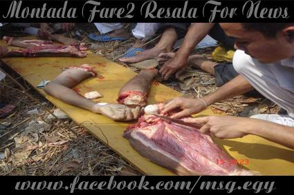 بالصور .. فى الدول المتقدمه يأكلون لحوم البشر الاموات  212