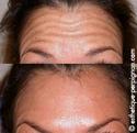 LES INJECTIONS DE BOTOX® OU TOXINE BOTULIQUE... Botox110
