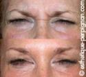 LES INJECTIONS DE BOTOX® OU TOXINE BOTULIQUE... Botox310