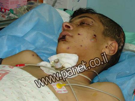 دفنوا ابنهم واكتشفو بعد13 يوم انه حي................... Gaza2010