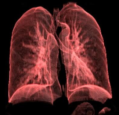 Kanceri, sëmundje e (pa) shërueshme! Kanmus11