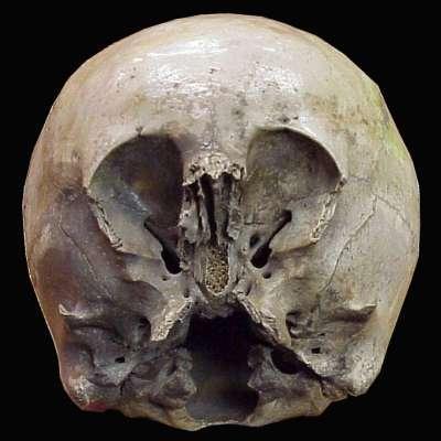 Le crâne de l'enfant des étoiles  Child_10