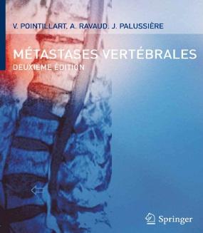 Métastases Vértébrales 2007 Captur15