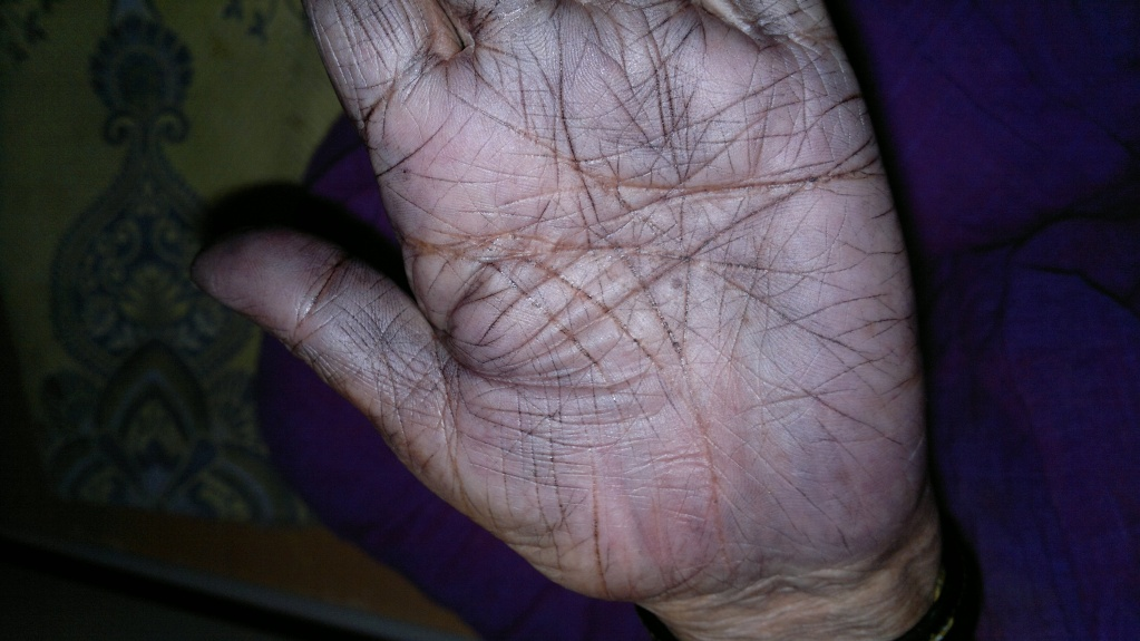 The Hands of Alzheimer's Patient 08042012