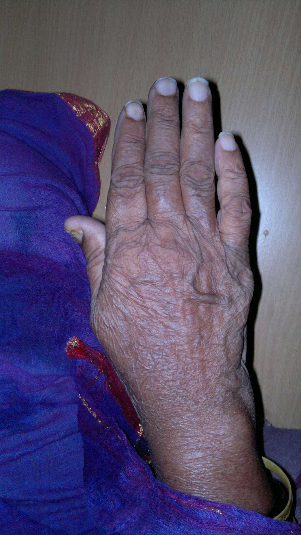 The Hands of Alzheimer's Patient 08042016
