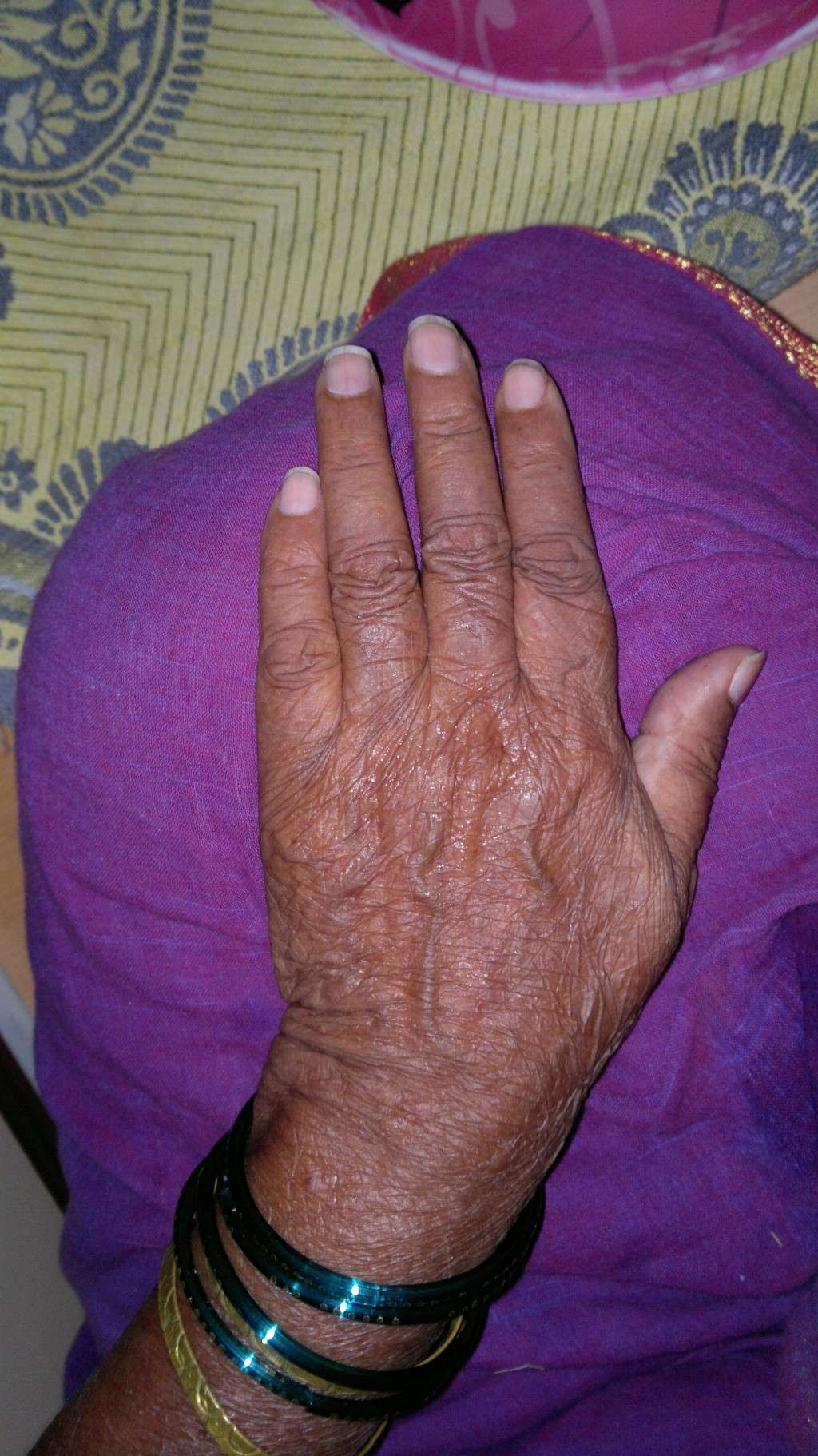 The Hands of Alzheimer's Patient 08042017