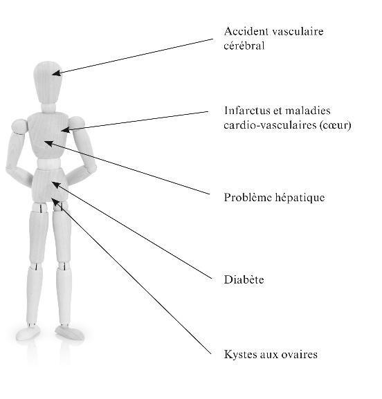 """Le syndrome de la """"bedaine"""" ou syndrome métabolique Ccc10"""
