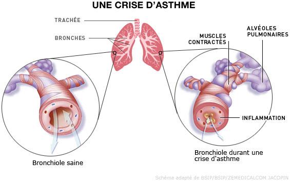 kawm ua doctor hav nyom - Page 3 Asthme10