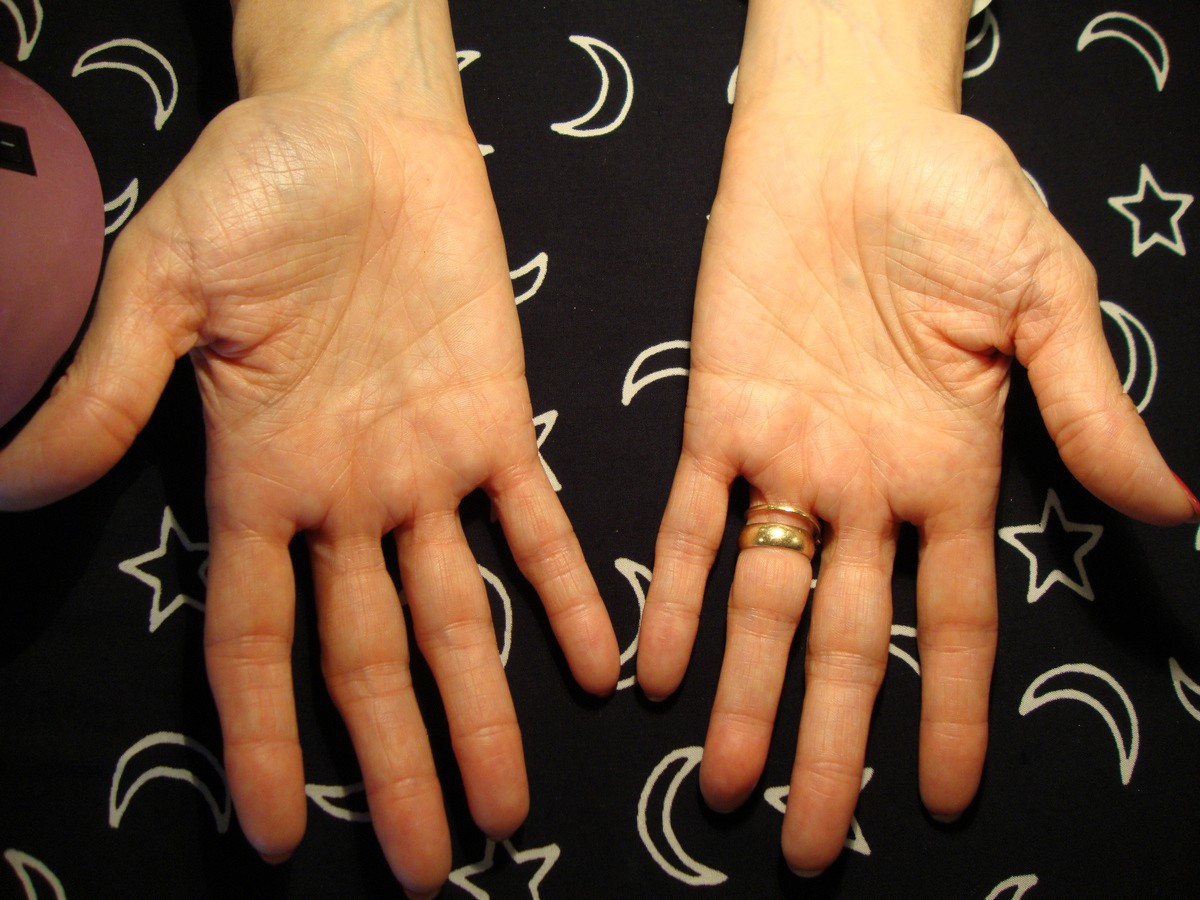 MARFAN SYNDROME - The language of the hands! - Page 2 Dsc09510