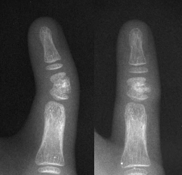 Strange bend of top planx of middle finger. Experts please? - Page 3 Jpg01110