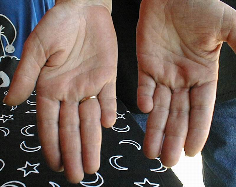 Low set finger (mercury finger) and meaning  Little10