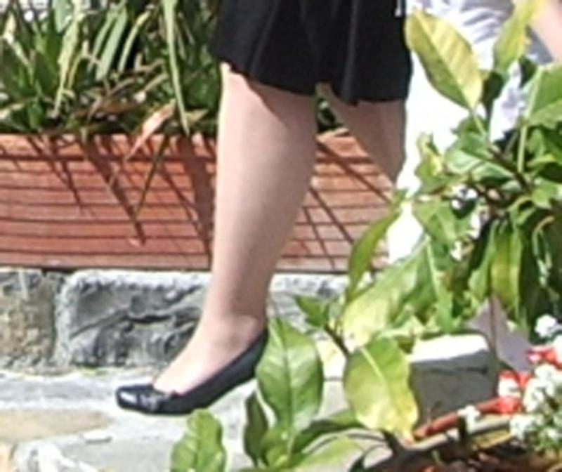 Linfodrenaggio manuale: metodo Vodder ❖ Vulvodinia.info Gambe10