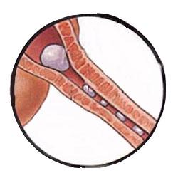 Πέντε τρόποι για να εμποδίσετε την ανάπτυξη ουρόλιθων Blocke10
