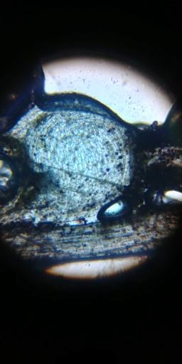Observation microscopique de piéges de U.Livida 20180710