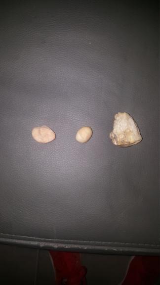 pierres trouvé dans la nature 15621810