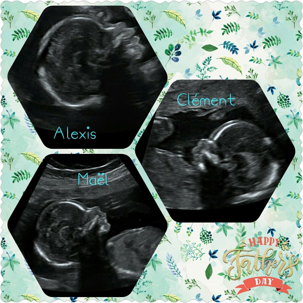 Alexis, mon bébé de l'Amour - Page 2 Photog10