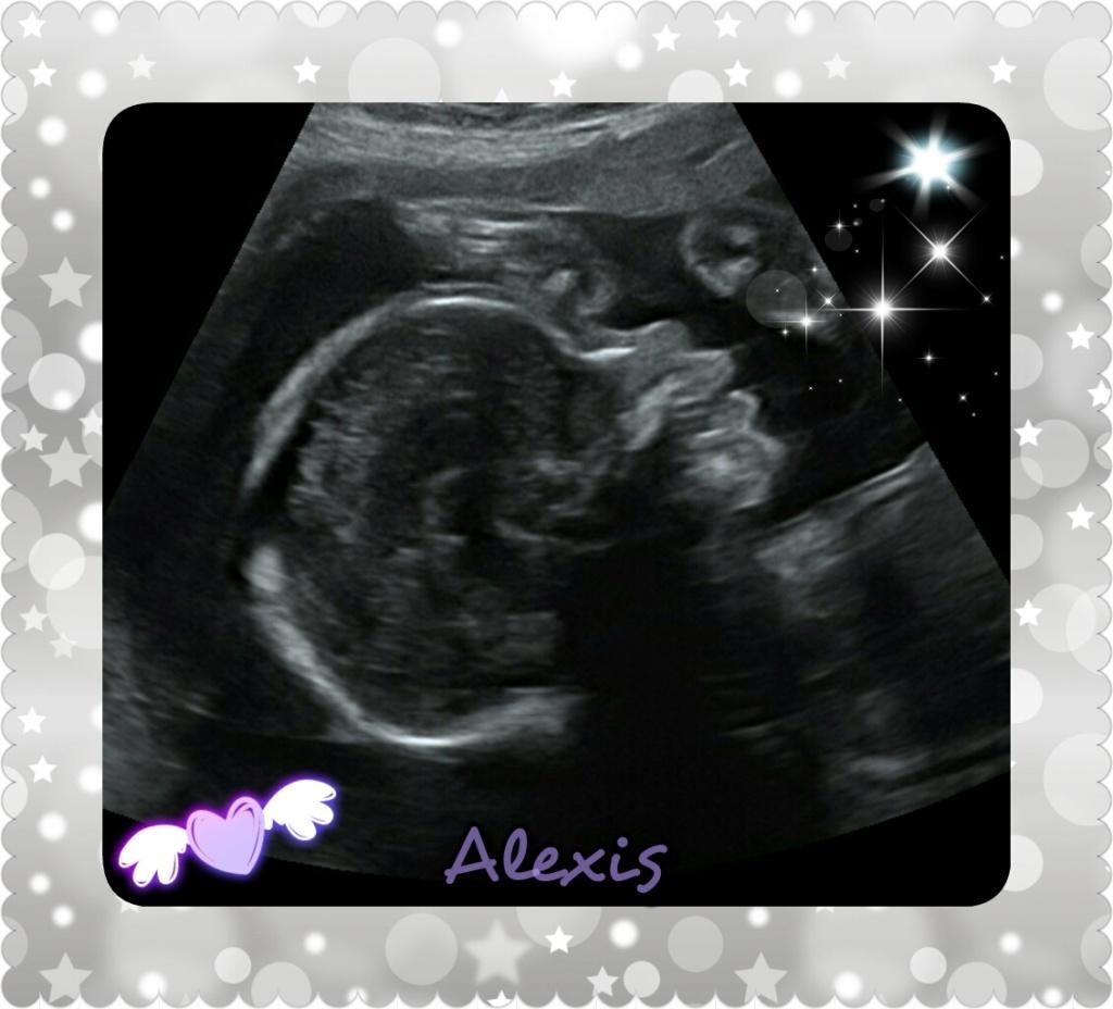 Alexis, mon bébé de l'Amour - Page 2 Photog14