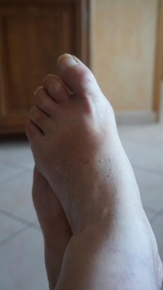 6 juillet : nos pieds Dsc01013