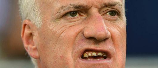 Dentition de Didier Deschamps Didier10