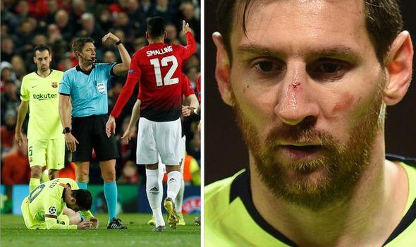 Após exames, Barcelona não detecta lesão em rosto de Messi Lionel13