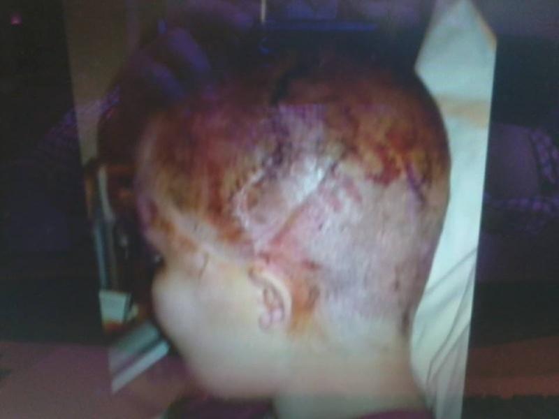 Jamais auparavant :implantation  d'un crâne [Vidéo + Photos]  10001310