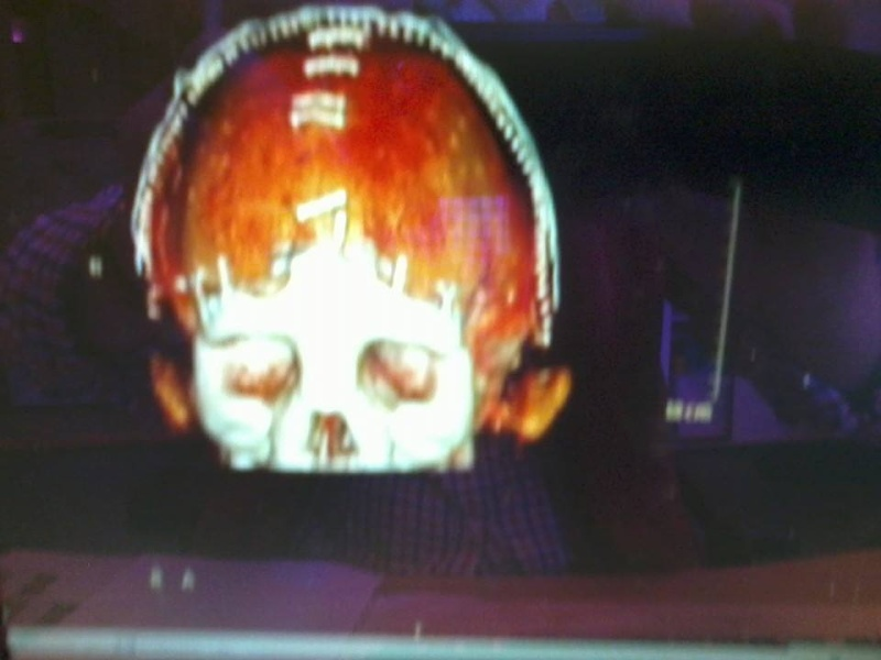 Jamais auparavant :implantation  d'un crâne [Vidéo + Photos]  10154111