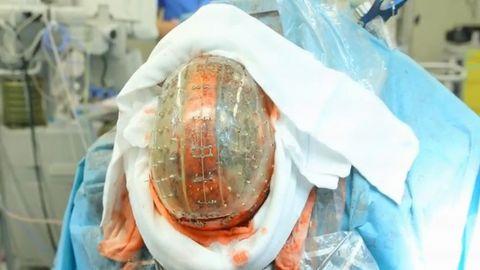 Jamais auparavant :implantation  d'un crâne [Vidéo + Photos]  Bda8ee10