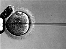 Naissance de 16 enfants sains issus de pères atteints de Klinefelter non mosaïques par ICSI, Greco 2013 220px-10