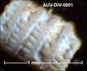 microfossiles divers d'Auvers sur Oise ( suite) Auv-di10